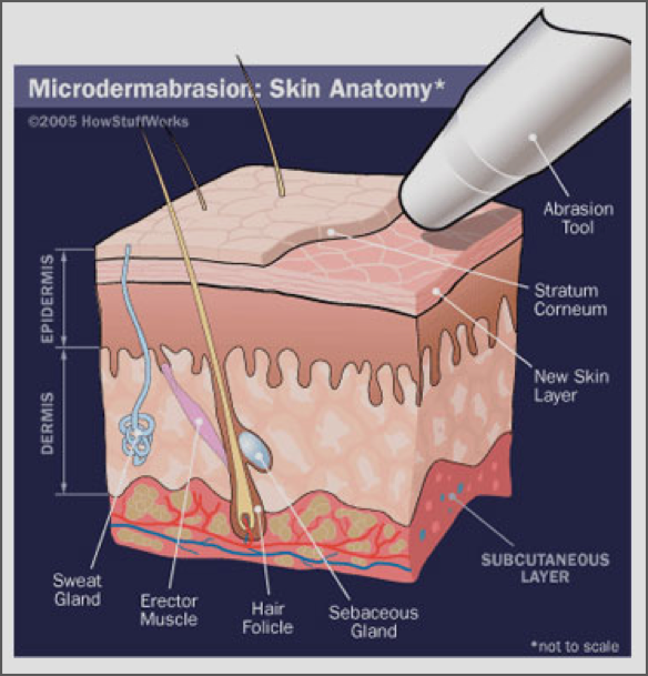 2-diamond-microdermabrasion